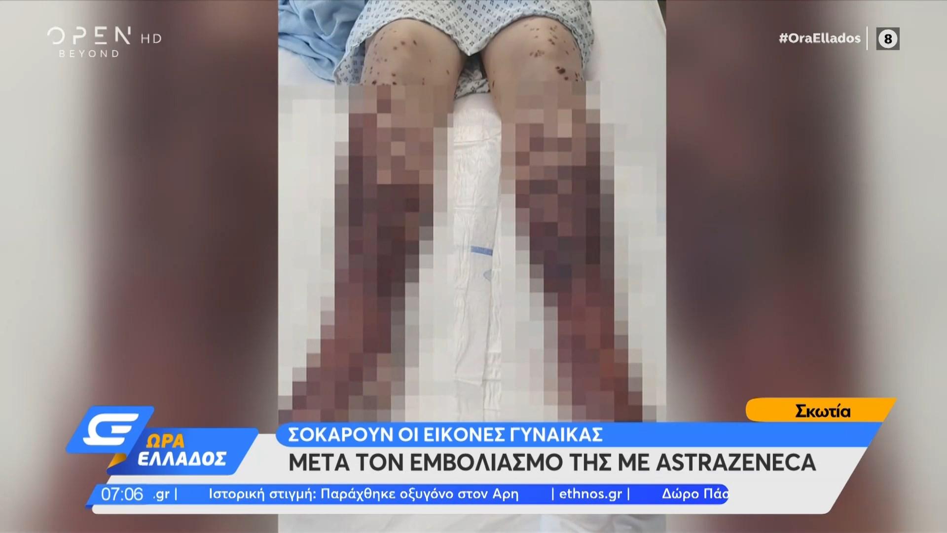 Σοκάρουν οι εικόνες γυναίκας μετά τον εμβολιασμό με AstraZeneca